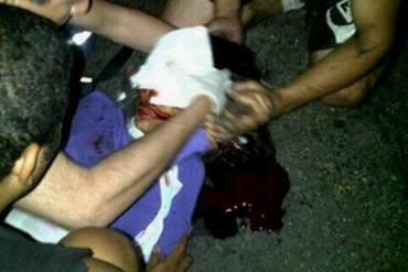 ¡IMPERDONABLE! GNB dispara en la cara a estudiante en Naguanagua + FOTOS