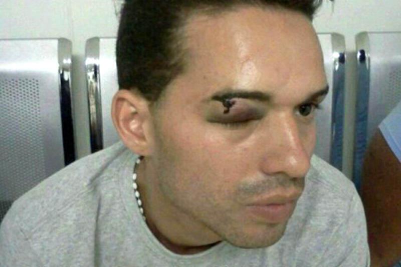 estudiante-herido