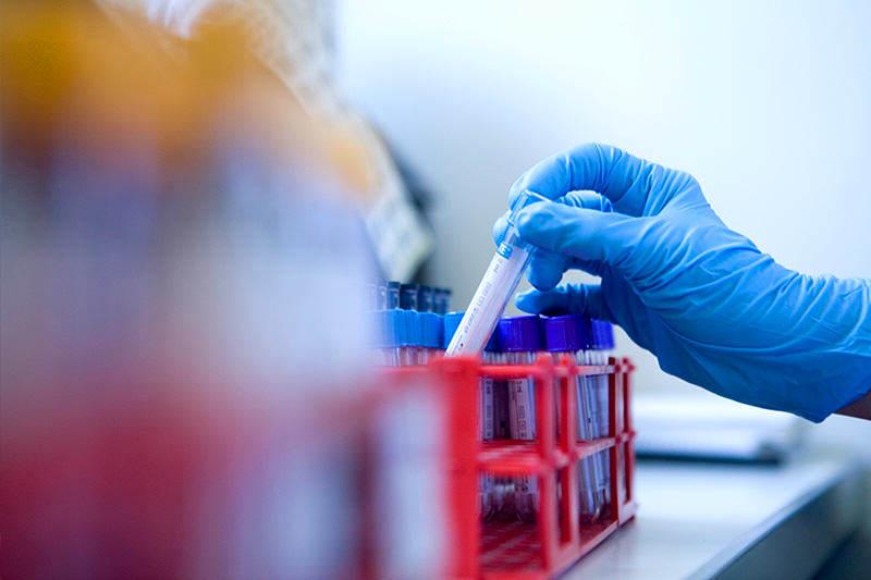 Salud-hospital-laboratorio-medicina-hematologia