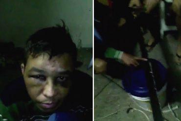 ¡VIDEO FUERTE! Reos de Politáchira le cortaron un dedo a un policía que tenían secuestrado (¿Aló, Iris?)