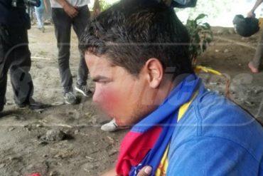 ¡QUÉ HORROR! Joven resultó herido con un perdigón en la cara durante manifestación opositora