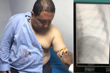 """¡SALVAJES DESATADOS! Colectivos """"de paz"""" fracturaron costilla al diputado José Brito"""