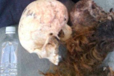 ¡DANTESCO! Horror en Lara: Hallaron cinco cabezas humanas dentro de un bolso