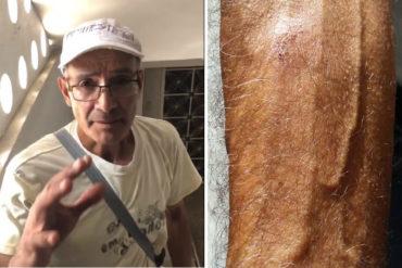 ¡IMPACTANTE! Vecino del edificio Don Eduardo afirma que vio cómo el dron sobrevoló y explotó: Salió levemente herido (+Video)