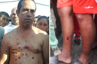 ¡LO ÚLTIMO! GNB dispersó con perdigones a pescaderos que protestaban en San Félix este #9Nov (+Fotos)