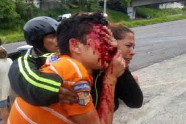 ¡TERRIBLE! Director de la Corporación de Salud del Táchira confirmó que Rufo Chacón perdió la vista por disparos de perdigón (+Video)