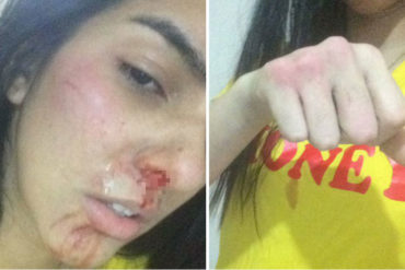 """¡QUÉ FUERTE! Joven relata cómo malandro la golpeó por no tener qué robarle: """"Hoy pude haber muerto a coñ*zos"""" (+Fotos sensibles +Video)"""